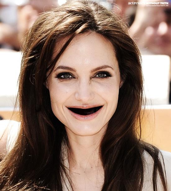Stars-ohne-Zaehne_Angelina-Jolie